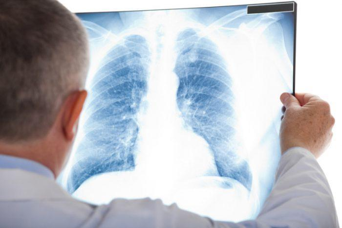 Các thuốc ức chế Tyrosine Kinase (TKIs) trong ung thư phổi không tế bào nhỏ: Chỉ định hiện tại và triển vọng trong tương lai!