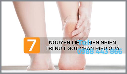 Mẹo chữa nứt gót chân bằng nguyên liệu tự nhiên